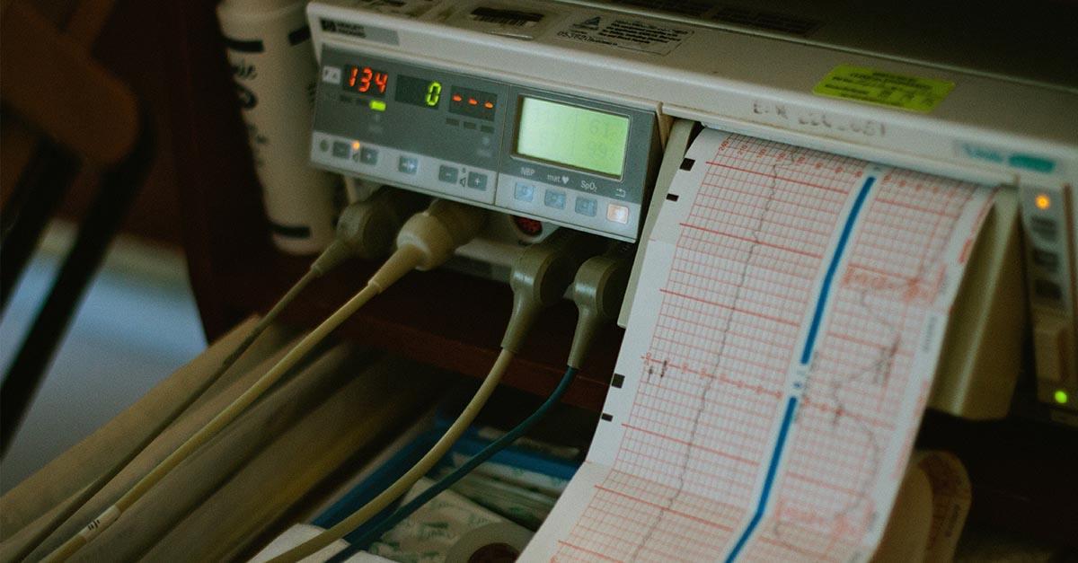 Muerte por infarto en el trabajo y solicitud de pensión por viudedad