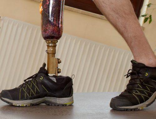 Derecho a prótesis de última generación en accidente laboral